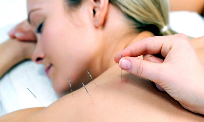 The Center for Natural Healing - Aina Haina: Acupuncture Packages at Center for Natural Healing (Up to 57% Off). Three Options Available.