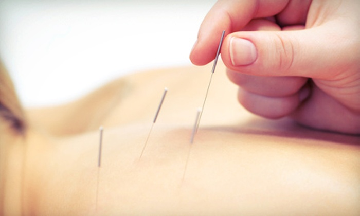 Red Oak Acupuncture - Alta Monte: One or Three Acupuncture Sessions at Red Oak Acupuncture (Up to 65% Off)