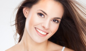 Narotique Teeth Whitening Services: $69 for Laser Teeth Whitening for One at Narotique Teeth Whitening Services ($69 Value)