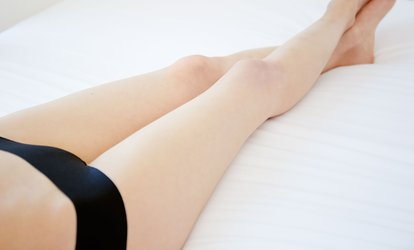 $59 for a Non-Invasive Vein Removal Treatment at MD Cosmedical Solutions, Three Locations (Up to $250 Value)