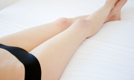 Three Spider Vein Removal Sessions on One $39, Two $59 or Four Areas $99 at Helix Laser Clinic Up to $860 Value