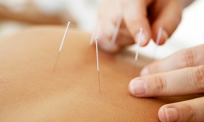 Jean Kuty, L.Ac., LCPC - Veterans Park: One or Two Acupuncture Treatments with a Consultation from Jean Kuty, L.Ac., LCPC (Up to 65% Off)