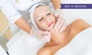 Karda Beauty: Microdermabrasion: One (£19), Three (£39) or Six (£65) Sessions at Karda Beauty (Up to 74% Off)