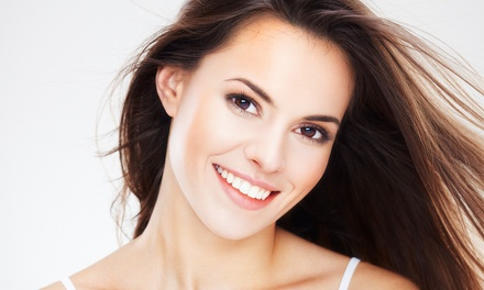 One or Two In-Office Teeth-Whitening Treatments at J&D Smile Labs (Up to 71% Off)