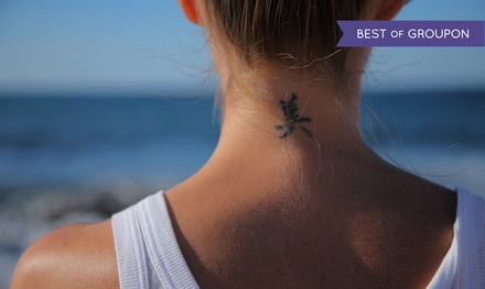 Metromd institute of regenerative medicine 67 off los for La tattoo removal