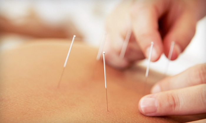 Dr. TCM Integrated Health Centre - Vancouver: One or Three 60-Minute Acupuncture Sessions at Dr. TCM Integrated Health Centre (Up to 63% Off)