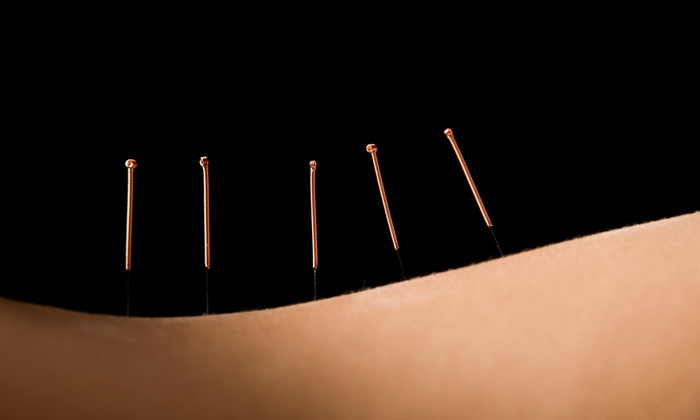 Dr. John Aguilar, Jr, Daom, Eamp - Dr. John Aguilar, Jr, Daom, Eamp: An Acupuncture Treatment and an Initial Consultation at John Aguilar, Jr, DAOM, EAMP (65% Off)