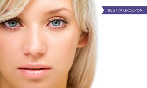 Columbus & Perfection Lasers: $399 for $2,500 Towards a Wavefront LASIK Procedure for Both Eyes at Columbus & Perfection Lasers