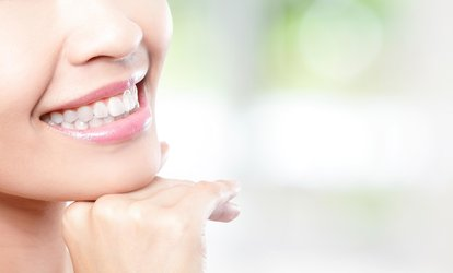 image for One Teeth Whitening with Purchase of Exam And Cleaning at Smile More <strong>Dental</strong>