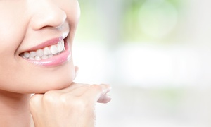 Smile More Dental: One Teeth Whitening with Purchase of Exam And Cleaning at Smile More Dental