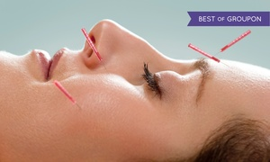 Alsip Integrated Medical Center: One or Three Acupuncture Sessions with Exam and Consultation at Alsip Integrated Medical Center (Up to 83% Off)