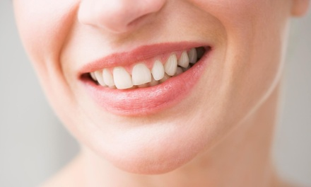 Up to 81% Off dental checkup at Preserve Your Teeth