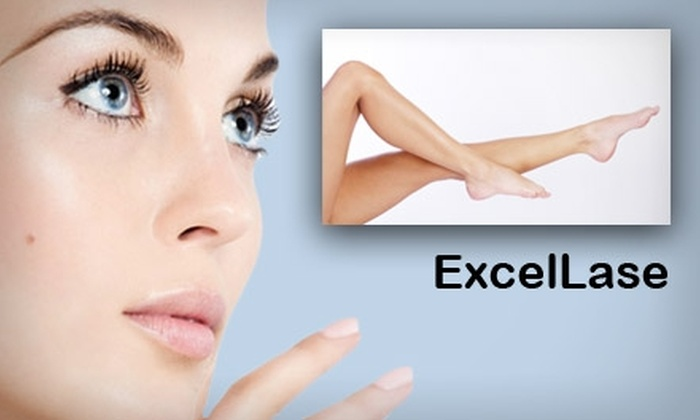 ExcelLase - Hayes Barton: $125 for Three Laser Hair-Removal Treatments at ExcelLase (Up to $450 Value)
