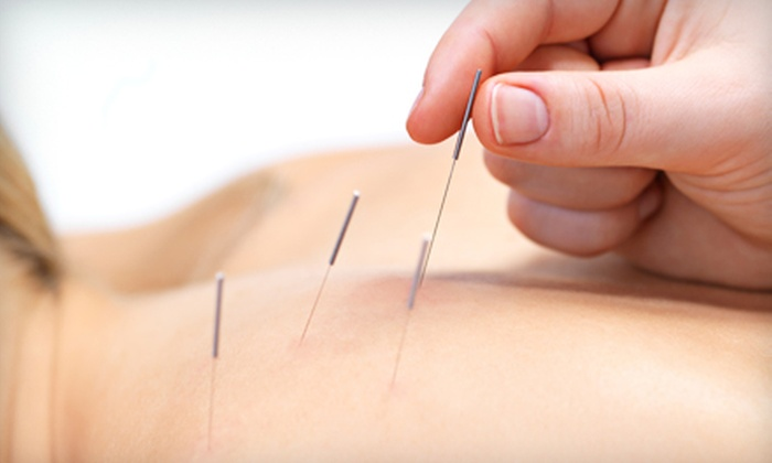 Serene Oasis Chiropractic & Acupuncture - North Heights: One or Two 60-Minute Acupuncture Sessions at Serene Oasis Chiropractic & Acupuncture in Boerne (Up to 78% Off)