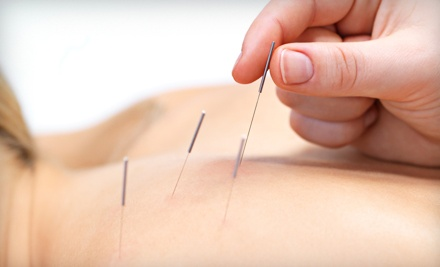 One 60-Minute Acupuncture Session (a $90 value) - Serene Oasis Chiropractic & Acupuncture in Boerne