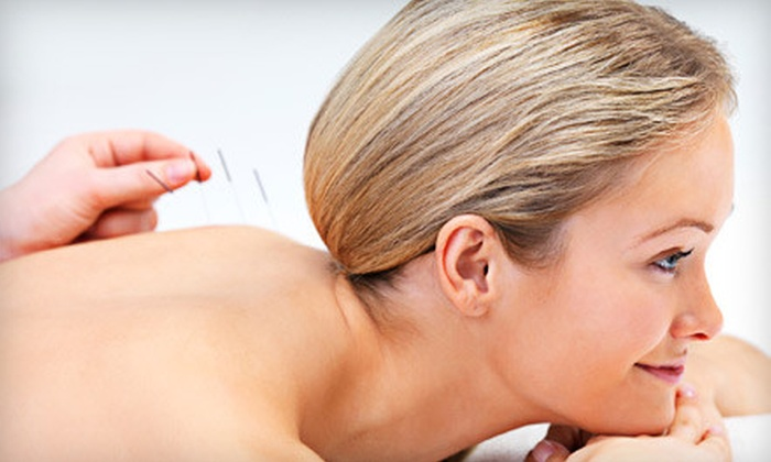 Choe's Miracle Acupuncture & Herb Center - Duluth: One, Two, or Four Acupuncture Sessions at Choe's Miracle Acupuncture & Herb Center in Duluth (Up to 74% Off)