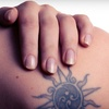 81% Off Laser Tattoo Removal