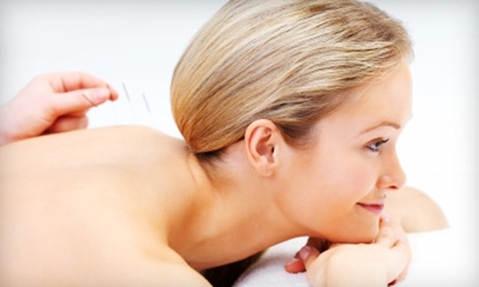 Krueger Chiropractic Clinic - Wheeling: $20 for One Acupuncture Session and Consultation at Krueger Chiropractic Clinic in Wheeling ($135 Value)