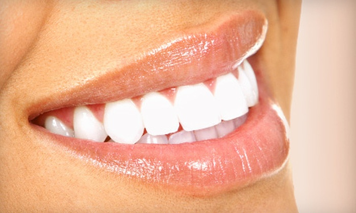 Fleur de Lis Dental Care Family Dentistry - East Bank,Lakewood: $59 for a Dental-Care Package with Exam, X-rays, and Teeth Cleaning at Fleur de Lis Dental Care Family Dentistry ($303 Value)