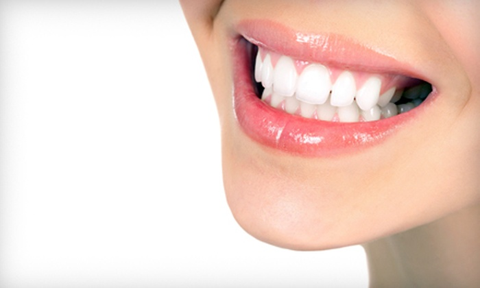 UltraWhite Clinic  - Haultain: $69 for a SpaWhite Express Teeth Whitening at UltraWhite Clinic ($159 Value)