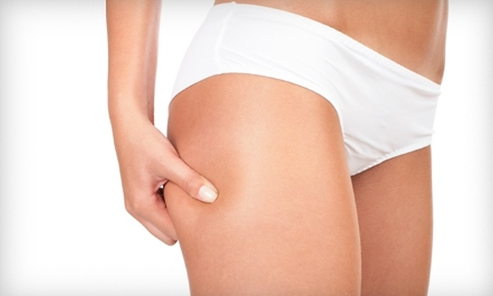 Help For Health - West Springfield: $185 for Three LipoLaser Treatments at Help for Health in Springfield ($750 Value)