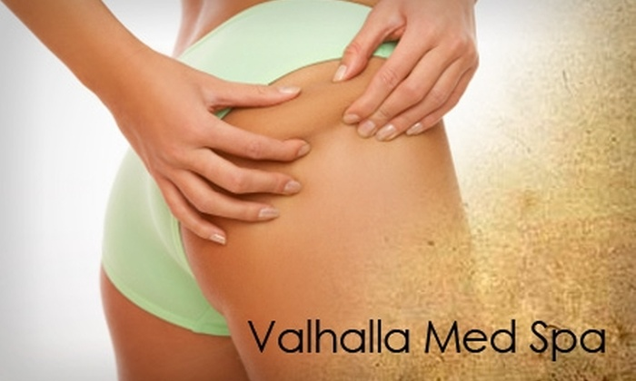 Valhalla Wellness and Medical Centers - Las Vegas: $50 for a ZERONA Laser Body-Sculpting Treatment at Valhalla Wellness and Medical Centers ($500 Value)