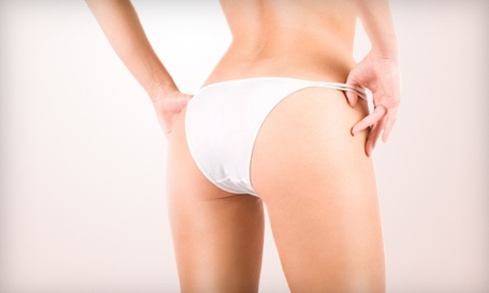 Southern Pines Aesthetics & Laser Institute - Southern Pines: Body-Contouring Treatments at Southern Pines Aesthetics & Laser Institute. Two Options Available.