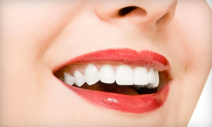 Krause Dental - Beneva Square: $89 for a Dental Exam with X-rays, Cleaning, and At-Home Whitening at Krause Dental in Sarasota (Up to $599 Value)