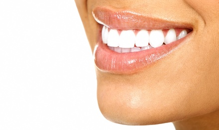 Dental Checkup with Exam, Bitewing X-rays, and Teeth Cleaning for One or Two at Capital Smiles (Up to 73% Off)