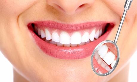 1, 2 o 4 sesiones de limpieza bucal con fluorización y revisión desde 12,90 € en Clínica Dental Paseo de la Habana