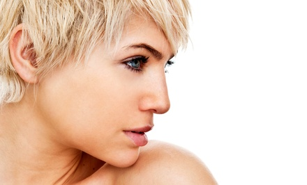 Photofacial with Optional ClearScan Facial-Vein Therapy at trioSkincare (65% Off)