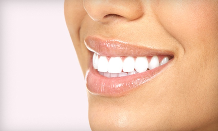 Shore Smiles - Mount Pleasant: $99 for a One-Hour Laser Teeth-Whitening Session at Shore Smiles in Mount Pleasant ($317 Value)