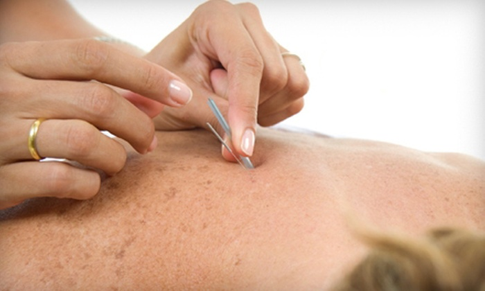 Leonard Chiropractic - Fairview Park: One or Three Acupuncture Sessions with Consultation at Leonard Chiropractic in Fairview Park (57% Off)