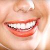 69% Off Zoom! Teeth Whitening in Marietta