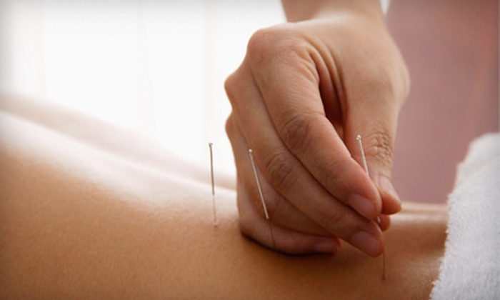 Point Del Mar Acupuncture - Del Mar Heights: $40 for Consultation and One Acupuncture Treatment at Point Del Mar Acupuncture ($120 Value)