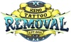 Reno Tattoo Removal - New Southside: Up to 78% Off Tattoo Removal at Reno Tattoo Removal