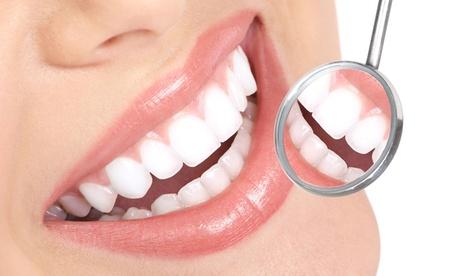 Limpieza dental con fluorización, revisión, pulido y opción a 1, 2 o 4 empastes desde 9,95 € en Selvadent