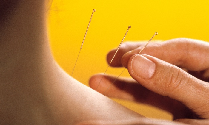 Acupuncture business plan