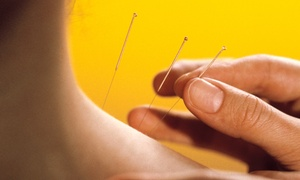10 body type Acupuncture Clinic: $29 for One Acupuncture Treatment with Consultation at 10 body type Acupuncture Clinic ($120 Value)