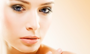 My Expression Day Spa: One or Three Derma Pen Microneedlingsat My Expression Day Spa (Up to 70% Off)