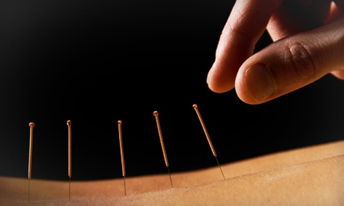 Healing Hands Medical Massage - South Fort Lauderdale: Consultation with One, Two, or Three Acupuncture Treatments at Healing Hands Medical Massage (Up to 84% Off)