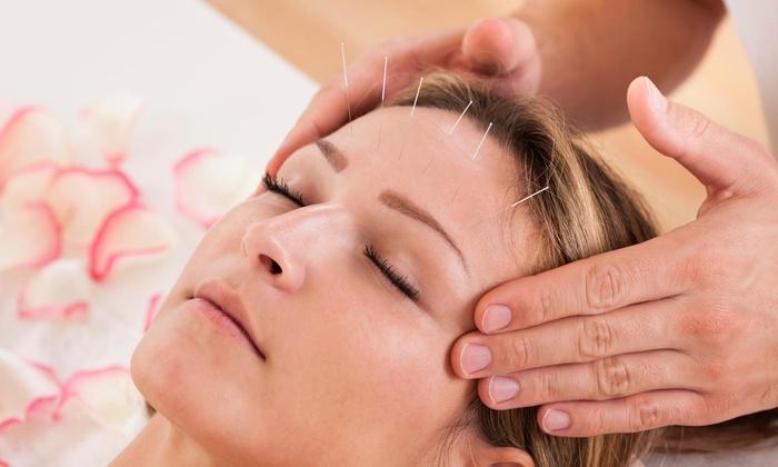 Sakura Wellness - Ward 2: An Acupuncture Treatment and an Initial Consultation at Sakura Wellness (65% Off)