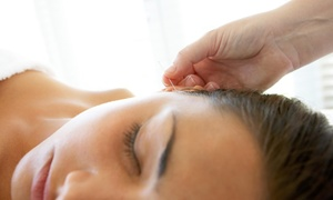 Living Well Acupuncture, Pa.: An Acupuncture Treatment at LIVING WELL ACUPUNCTURE, PA. (72% Off)