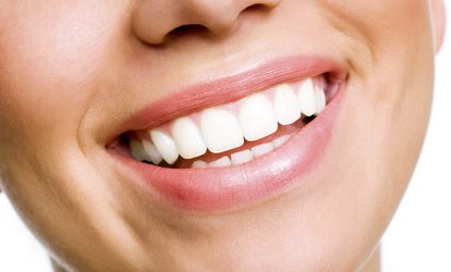 $39 for Teeth Whitening and $1,500 Toward Full Invisalign at Stonebrook Dental