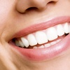 $1,461 Off Invisalign Treatment Package
