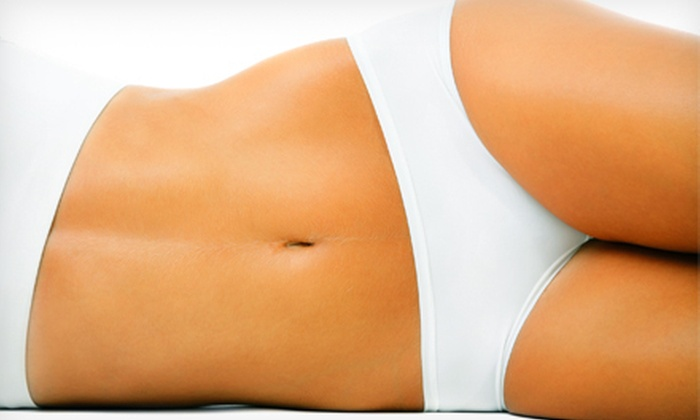Better Bodies - San Ramon: $399 for Three Zerona Body-Sculpting Treatments at Better Bodies in San Ramon ($1,695 Value)