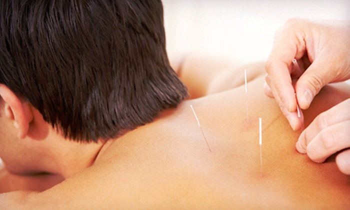 Element 5 Om - University Place: One or Two One-Hour Acupuncture Sessions, or Express Stress Relief and Cupping Session at Element 5 Om (Up to 68% Off)