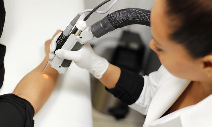 Radiance Laser Skincare - Providence: Six Laser Hair-Removal Treatments at Radiance Laser Skincare (Up to 85% Off)