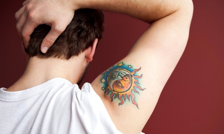 Three Laser Tattoo-Removal Sessions on a Small, Medium, or Large Area at Kelowna Laser Medispa (Up to 75% Off)