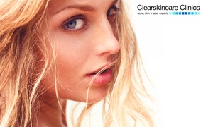 Clearskincare Clinics: $79 for Microdermabrasion, Crystalite LED Light Therapy, and Mask at Clearskincare Clinics, 41 Locations ($224 Value)